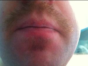 Movember blues